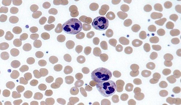 neutrofilia-1