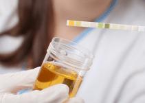 esame-delle-urine