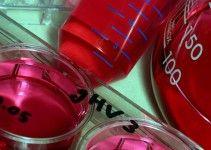 sideremia-alta-sintomi-cause