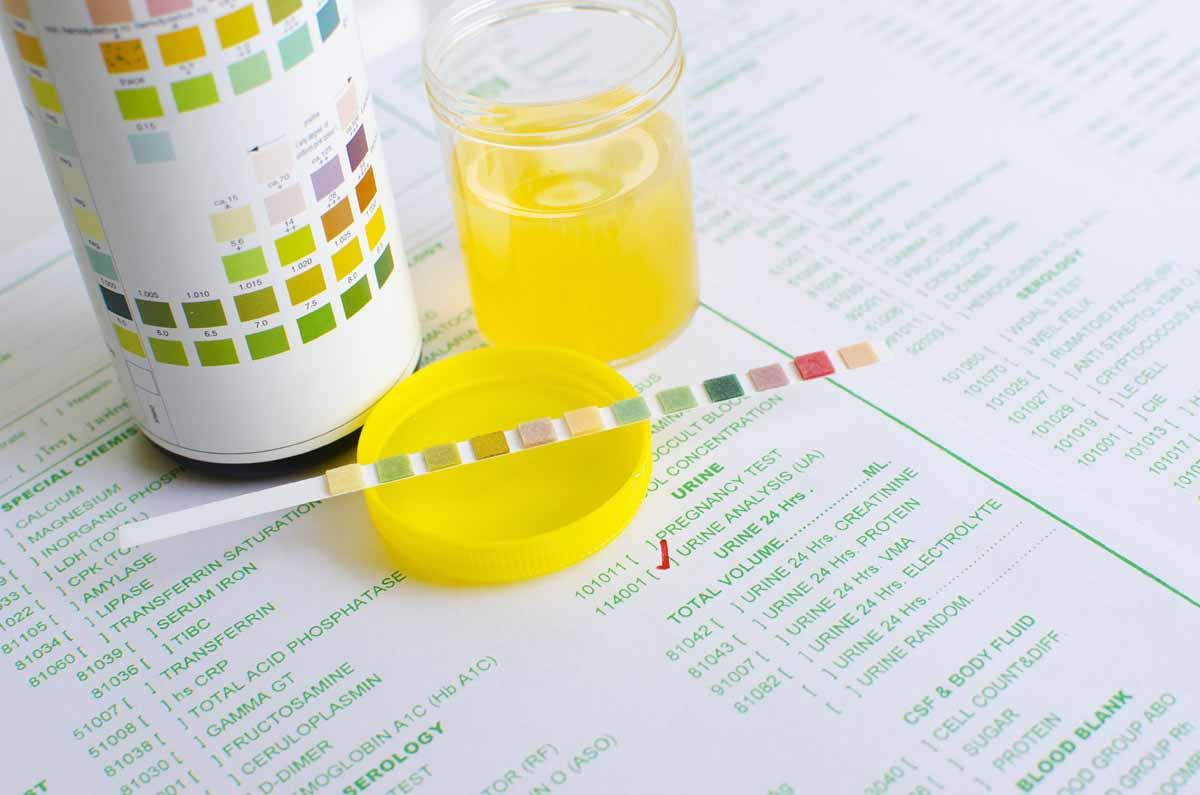 Valori di proteine nelle urine