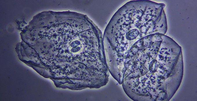 Cellule epiteliali