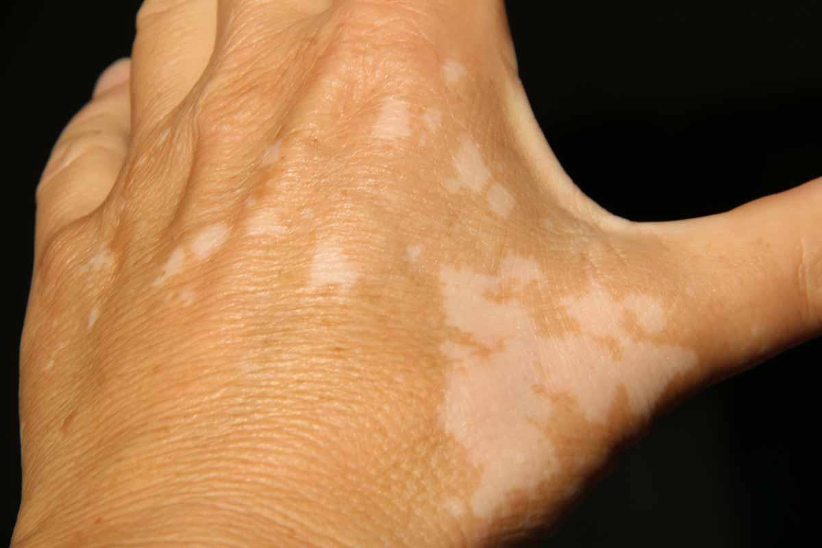 Le macchie bianche sulla pelle e la vitiligine