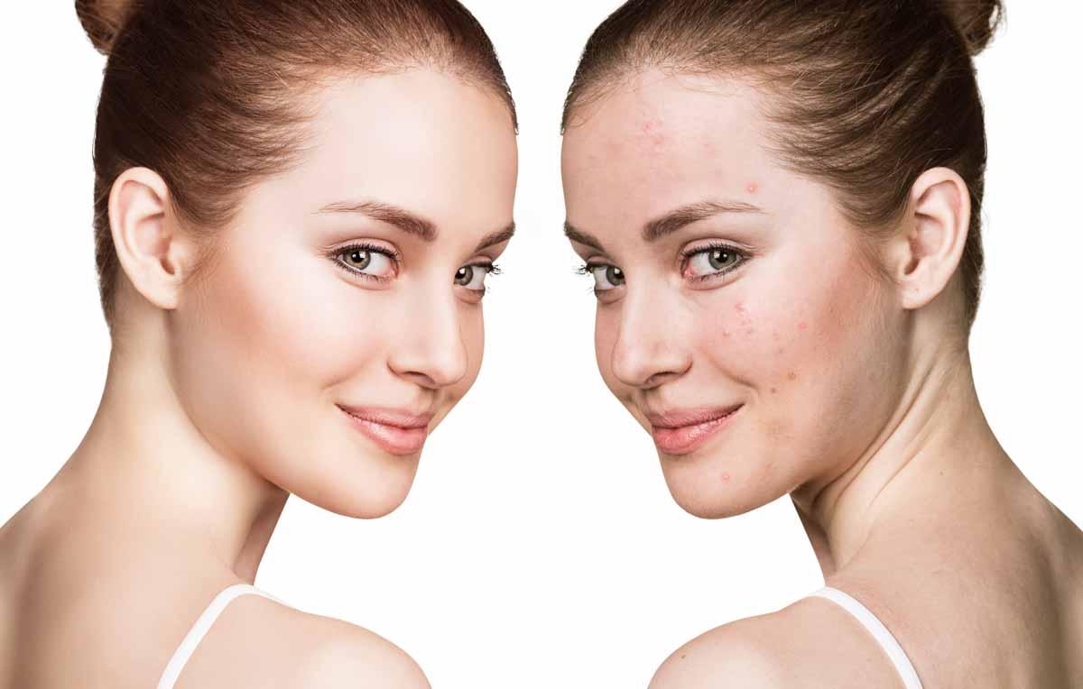 Come si tratta l'acne cistica