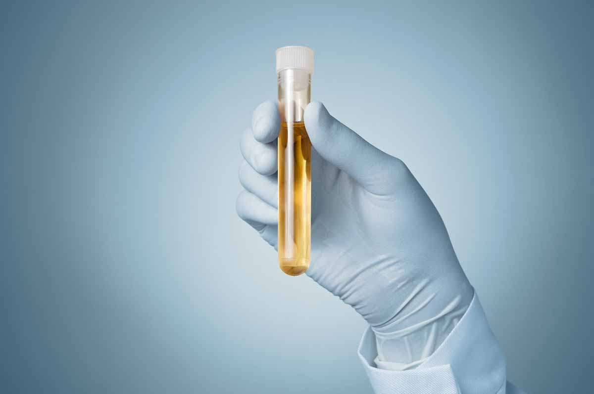 Test di nitriti nelle urine e test dell'esterasi leucocitica