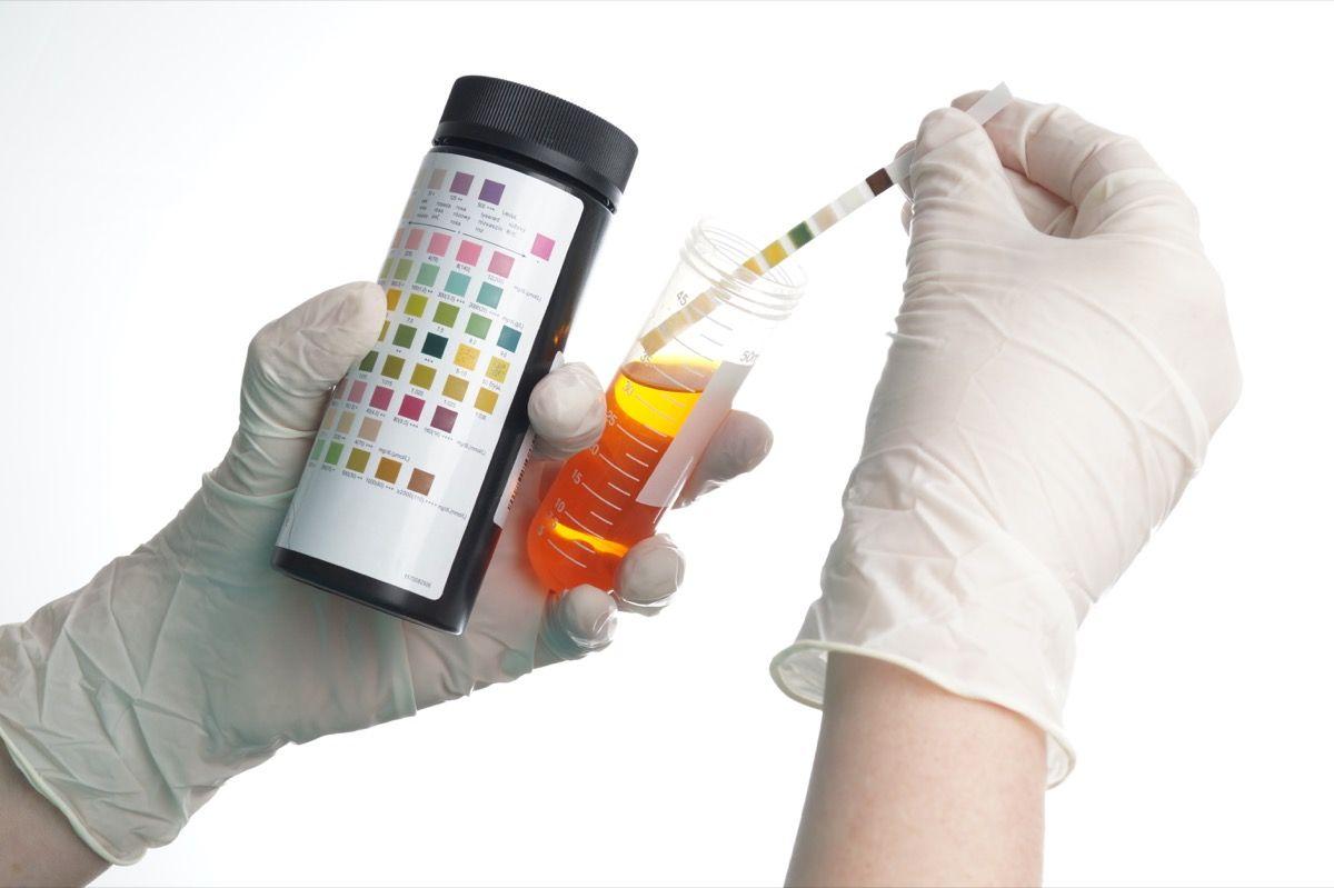 Corpi chetonici nelle urine