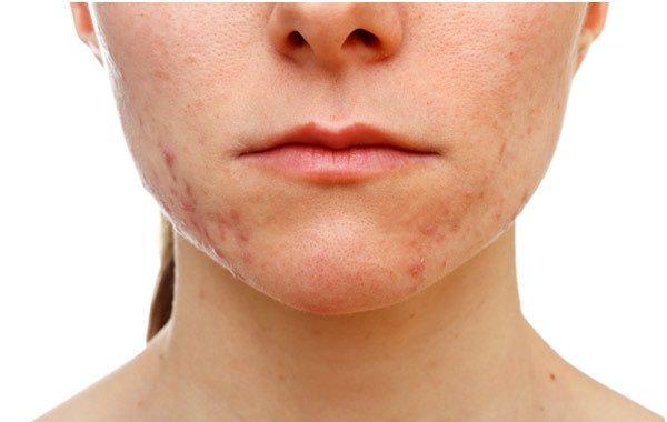 Posti sul trattamento di faccia da cipolle