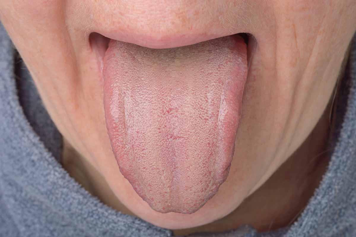 Candidosi orale: morfologia e localizzazione