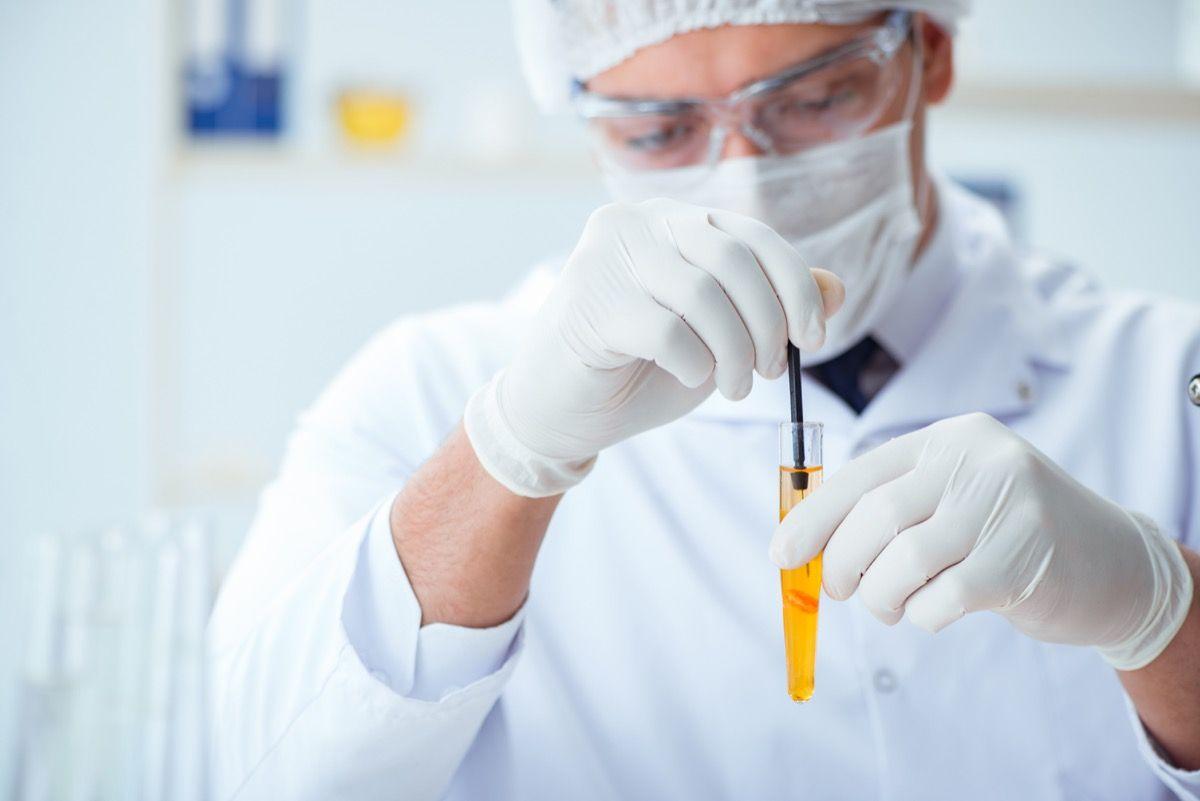Cellule epiteliali squamose nelle urine