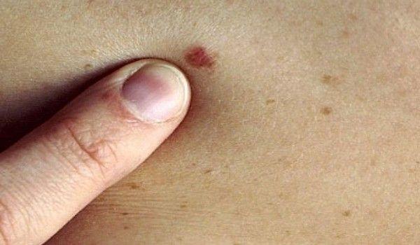 melanoma-cutaneo