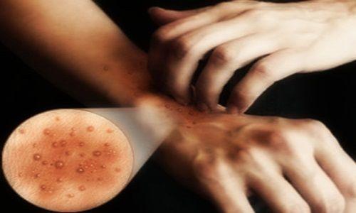Cura di eczema seboreyny secco della testa