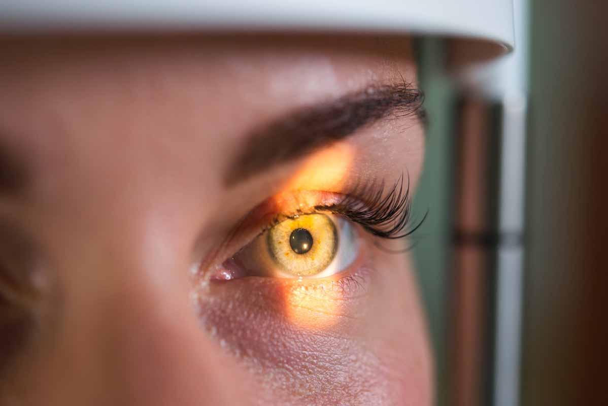 Come rimediare al calazio dell'occhio