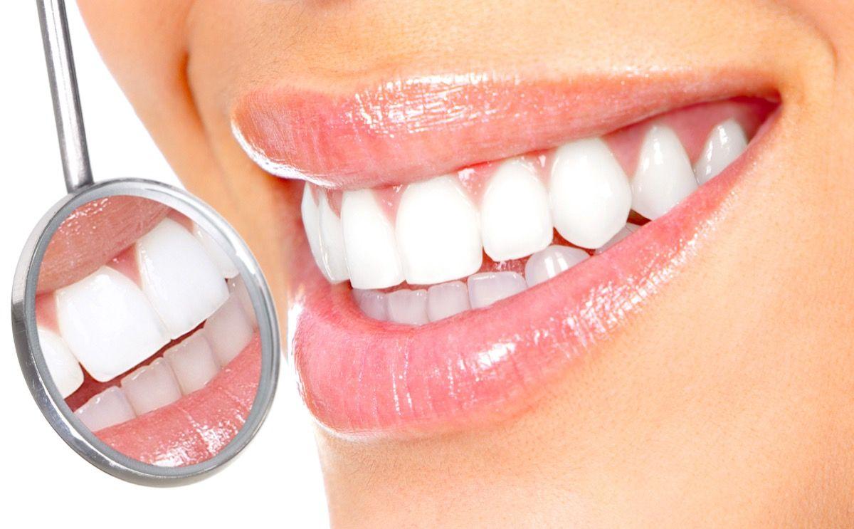 Come viene curata la disodontiasi