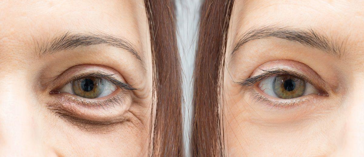 Occhiaie nere: la prevenzione