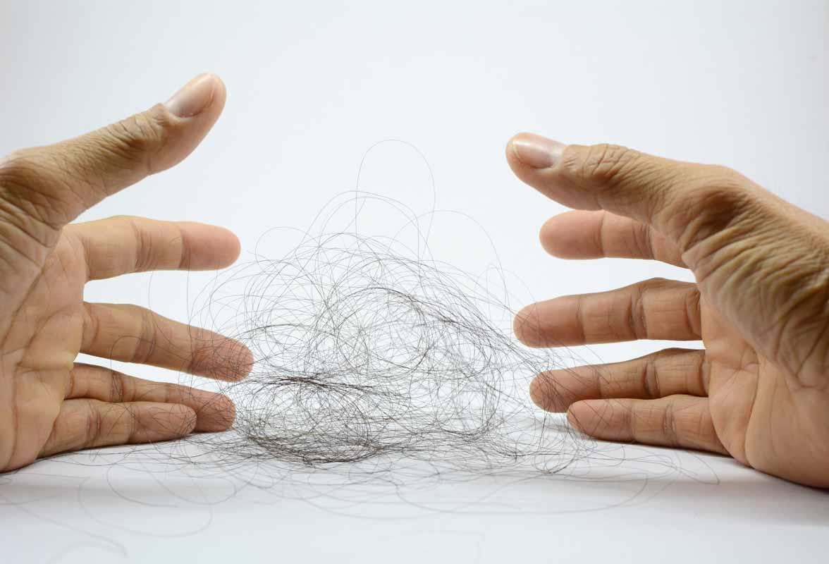Sintomatologia legata alla caduta dei capelli