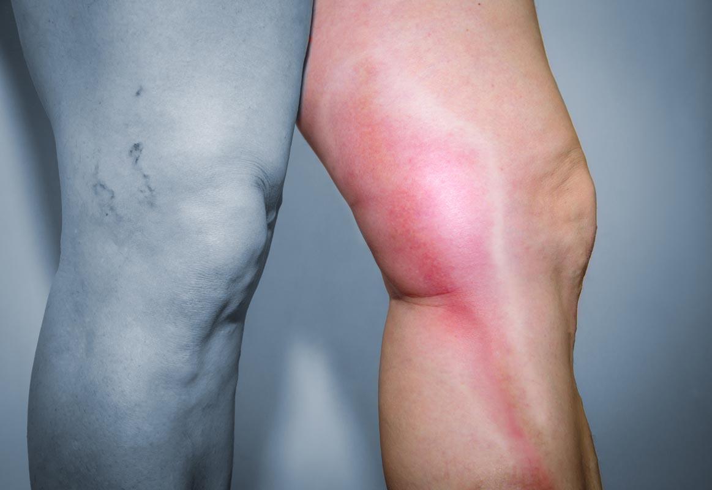 dolore allinguine anteriore