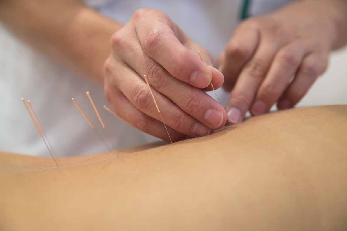 Come funziona l'agopuntura per dimagrire