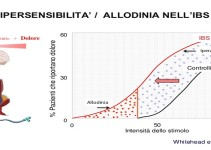 Allodinia