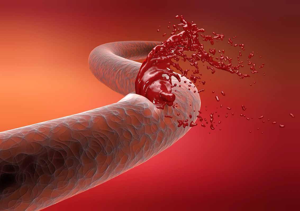 Vena arteria rottura taglio emorragia sangue