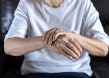 Artrosi interapofisaria