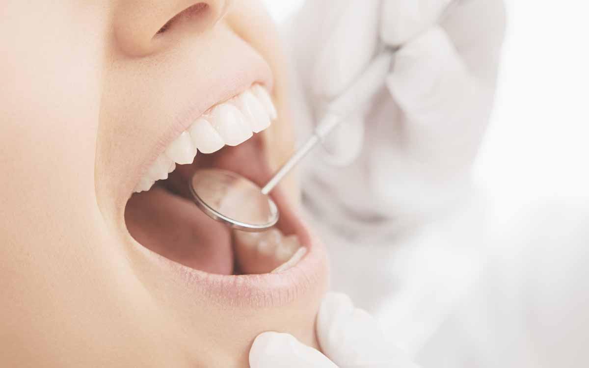 Brev(issim)i cenni sull'anatomia di un dente