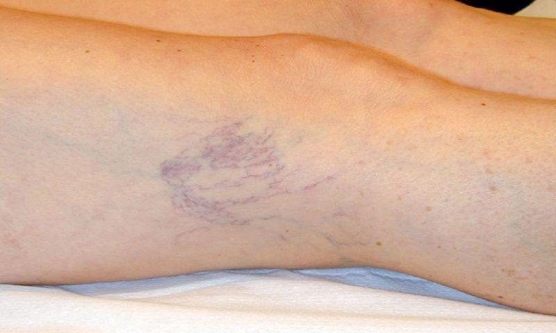 Se è possibile formare gambe a varicosity