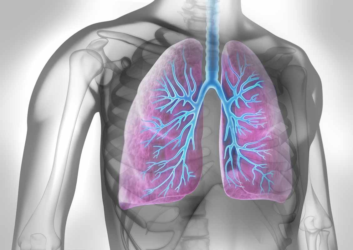 Cause della embolia polmonare