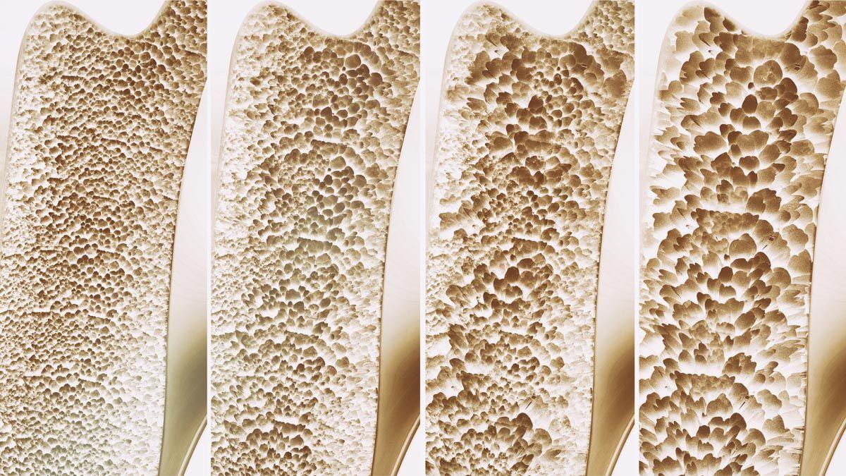 Sintomi degli osteofiti e dell'osteofitosi