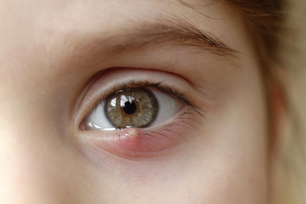 Epifora: occhi che lacrimano