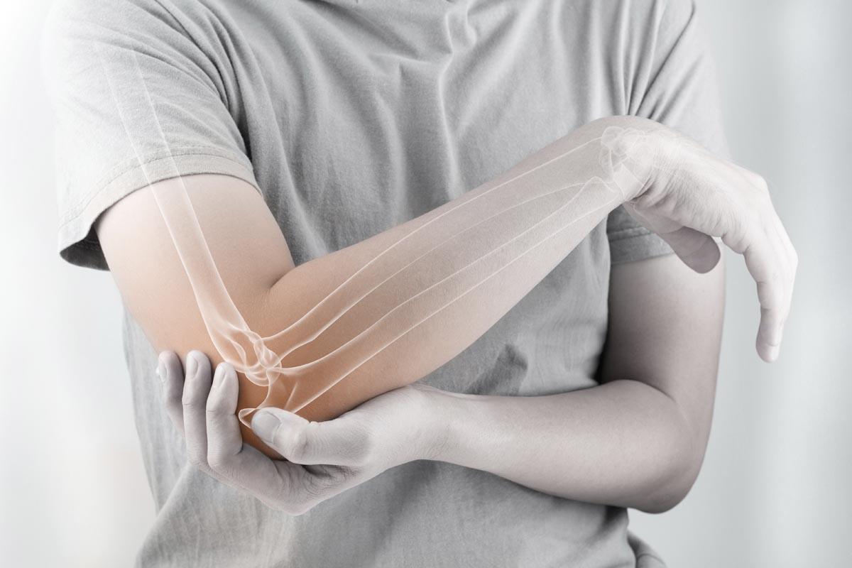 Diagnosi dell'osteofitosi