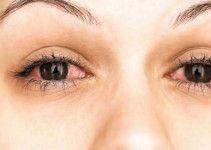 rimedi-occhi-rossi-secchi