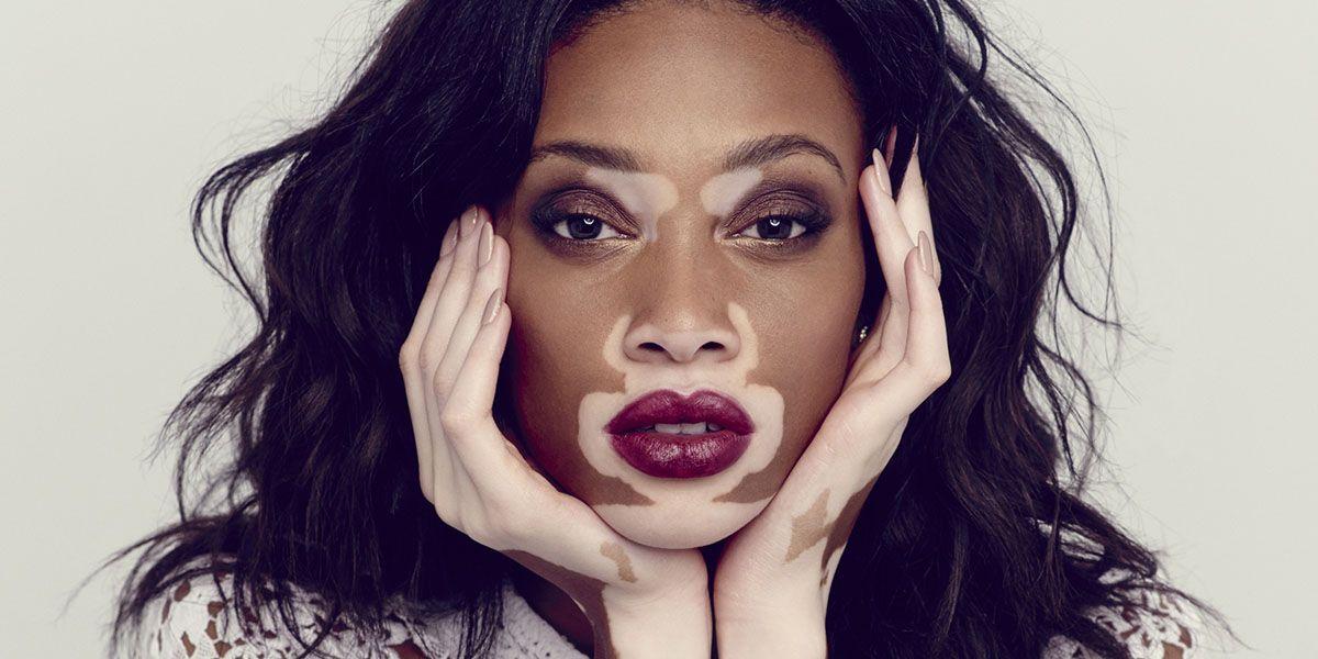 Il peeling per le risposte di persona da pigmentazione su una faccia