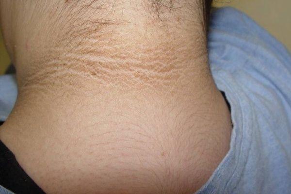 Pigmentazione di pelle dopo di 50 anni