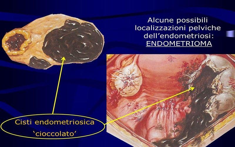 Cisti endometriosica