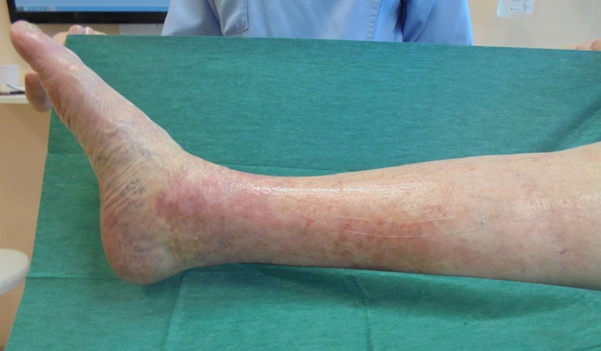 Parto o Cesareo a varicosity