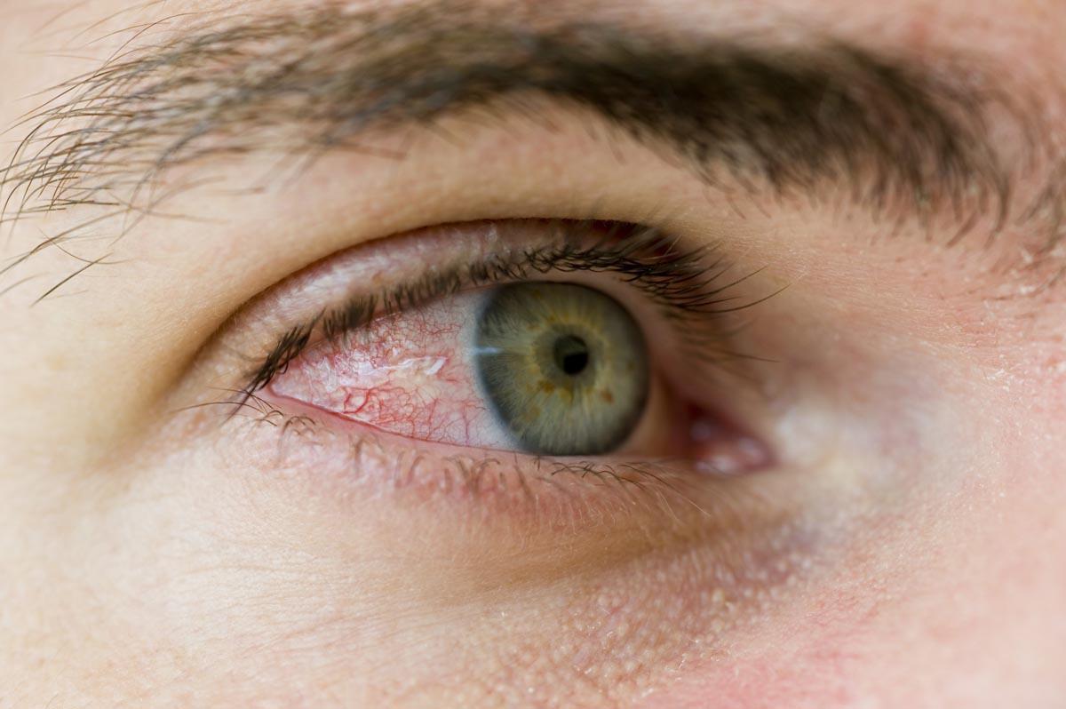 Cosa si intende per occhi rossi