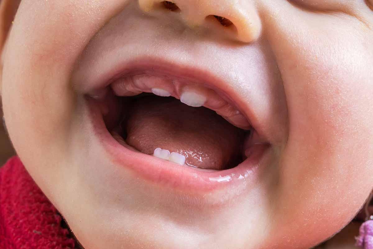 Primi dentini: 5 cose da sapere sulla dentizione