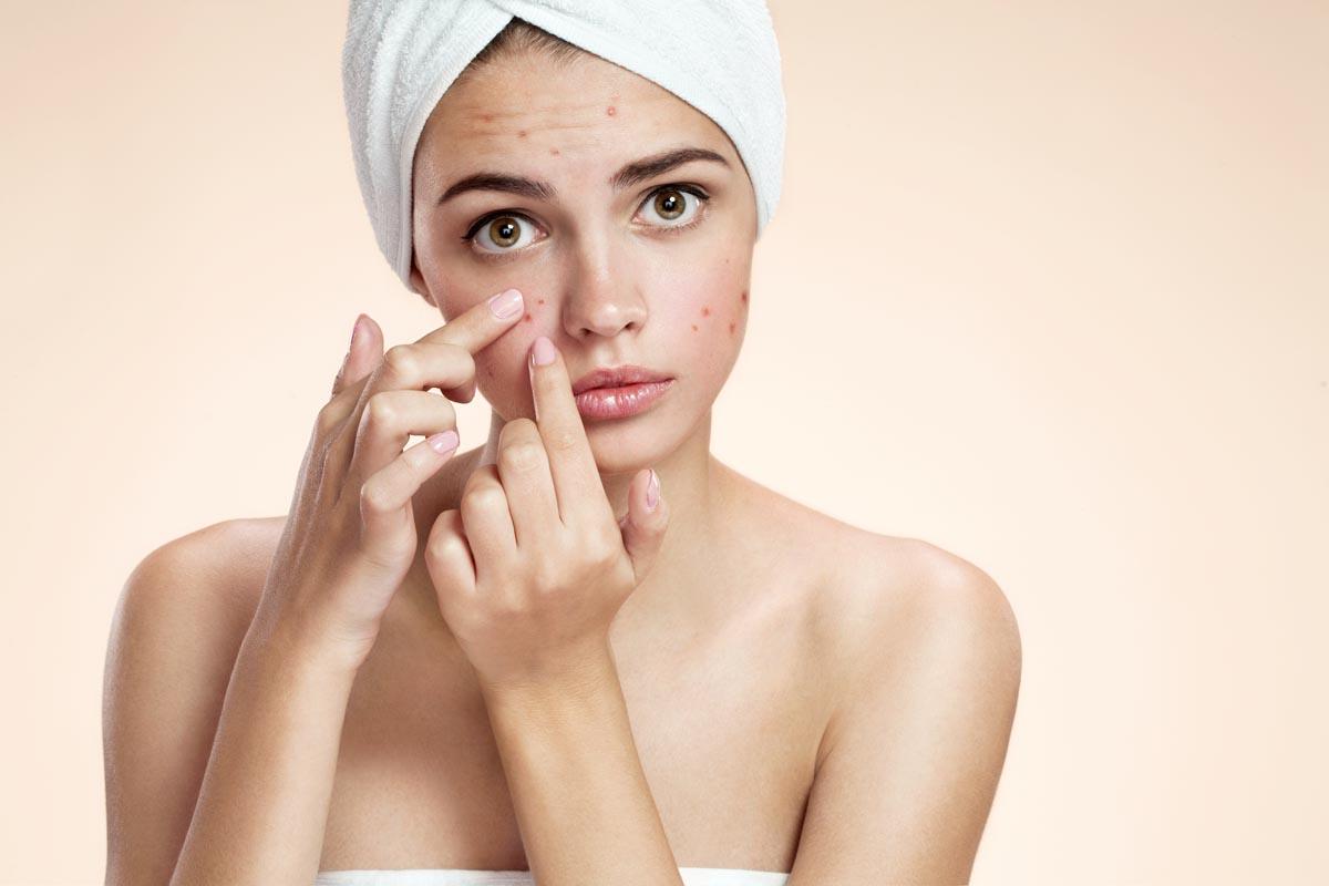 L'acne