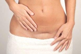 Le ultime emorroidi di gravidanze di settimane si sono sviluppate