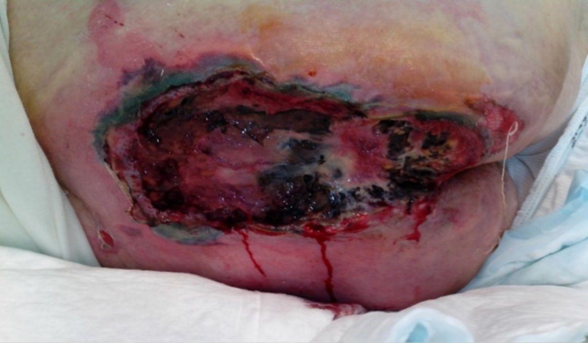 Lesione da decubito