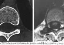 Osteoma osteoide