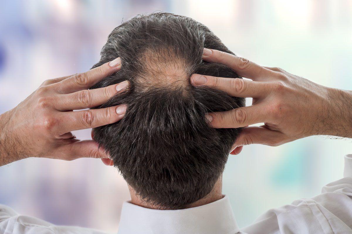 Sintomi e cause dell'Alopecia