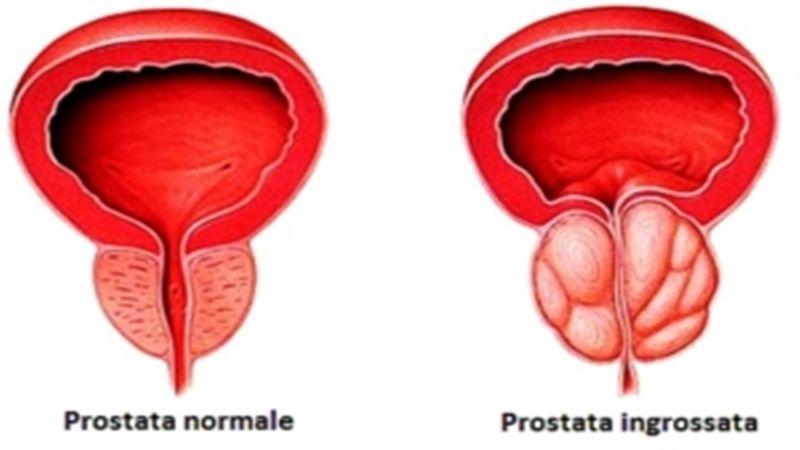 adenoma prostatico