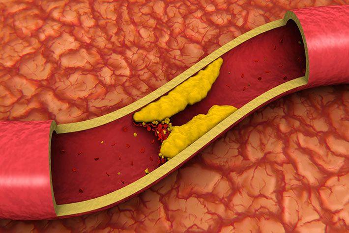 colesterolo-cattivo-ldl-prevenzione-abbassamento