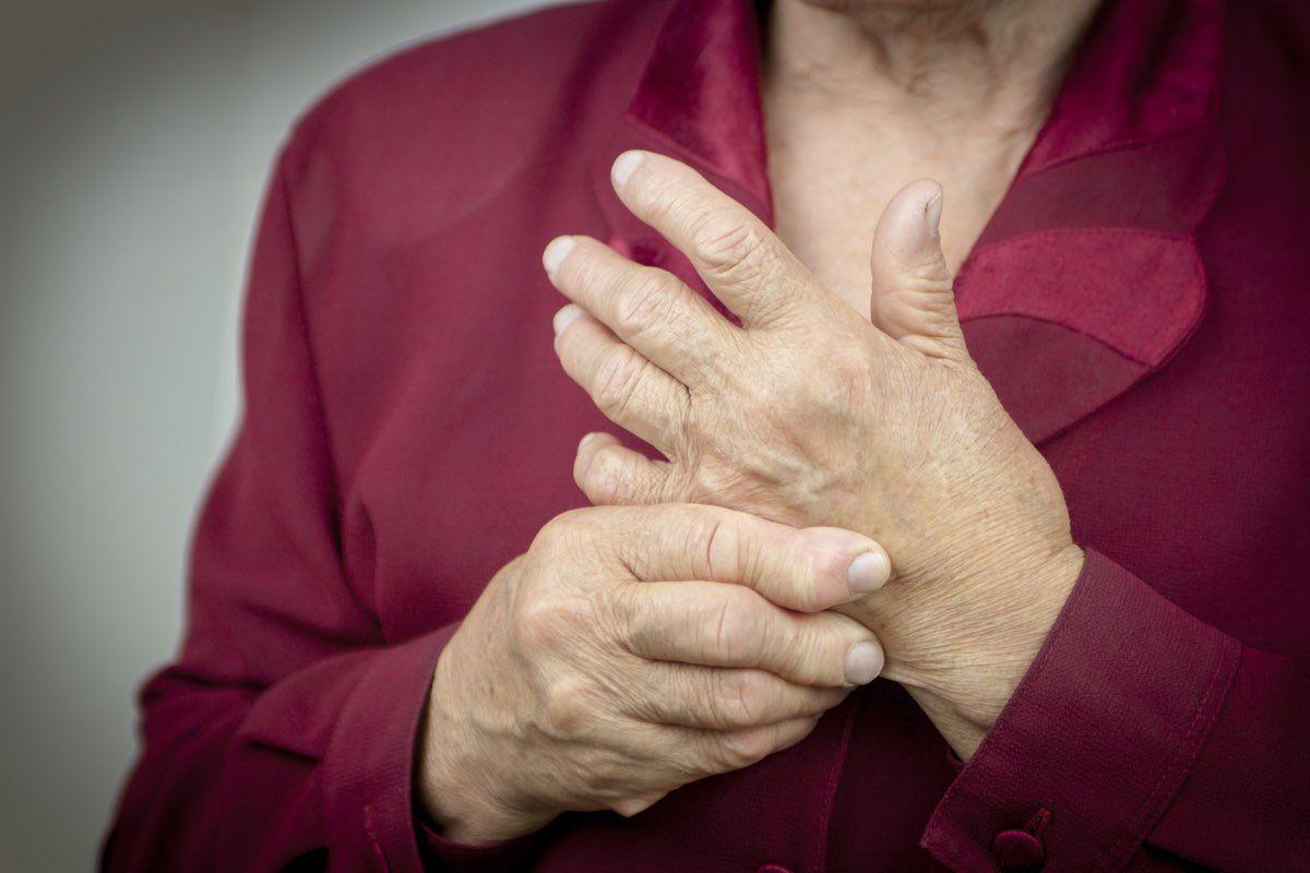 cure mediche artrite reumatoide