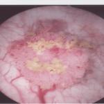 eteroplasia