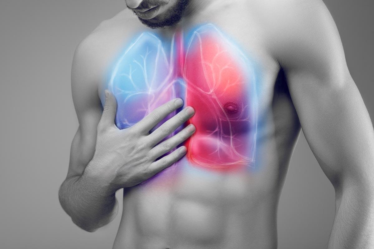 Bronchiectasie: cause e trattamenti