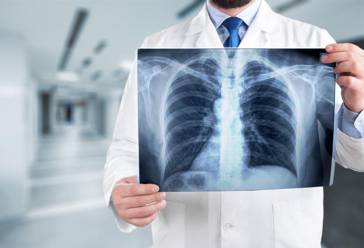 Bronchiectasie: sintomi