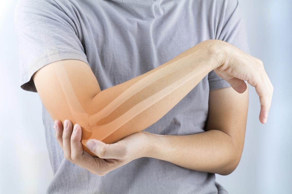 Mielofibrosi: midollo osseo