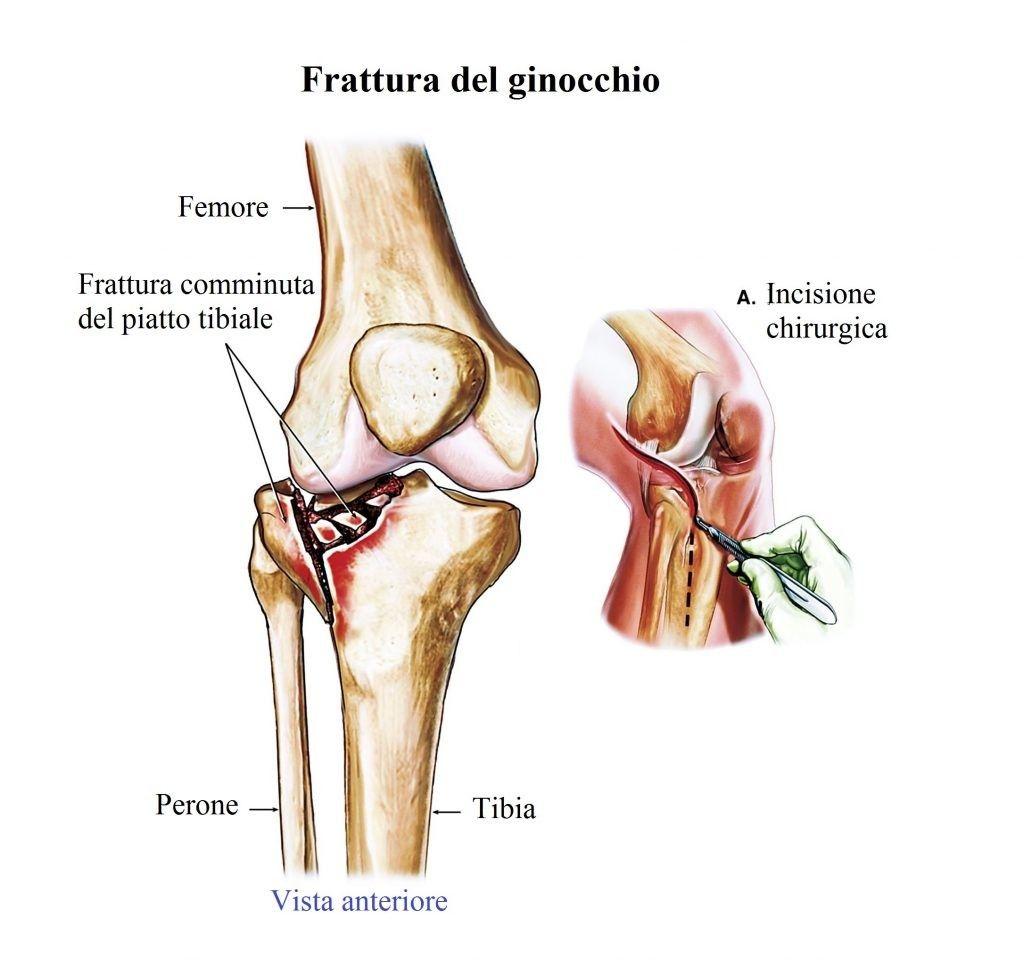 frattura-del-piatto-tibiale-del-ginocchio-1024x960