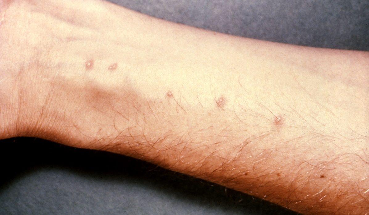 La presentazione di parassiti soggetti in un corpo umano